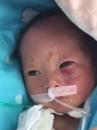 newborn baby fighting for with broken bones and brain damage
