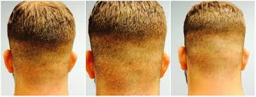 neograft recovery timeline hair restoration honolulu hair transplant honolulu