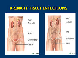 lindsay high biology project urinary tract infections uti u0027s