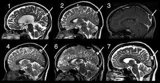 Sagittal Brain Mri Anatomy Large Arachnoid Granulations Involving The Dorsal Superior