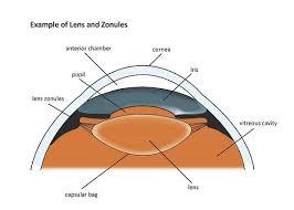 Surface Anatomy Eye Basic Eye Anatomy Cataract Surgery Information