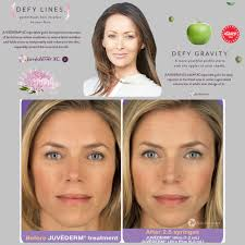 injectable fillers still waters day u0026 medical spa pensacola