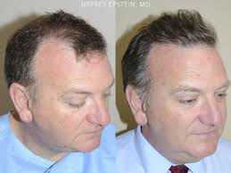 best hairtransplant in the world hair transplants for men photos hair restoration miami fl