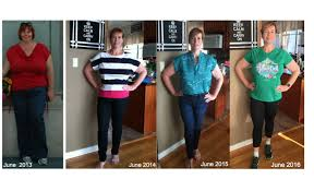 bariatric surgery down the scale my weight loss journey