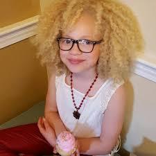 albino models u0026 black women hairstyles hairstyles 2017 hair