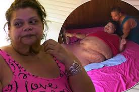 lupe from my 600 lb life obese woman loses 423lbs and her husband during gruesome skin