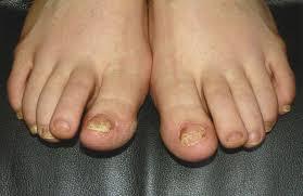 stunning laser for toenail fungus on small nail decoration ideas
