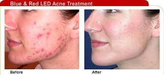 does at home red light therapy work does red led light therapy work and blue for acne skin care tips