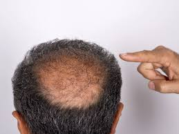 the bald spots that are linked to cancer easy health options