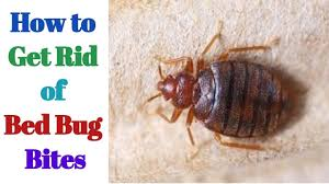 The Best Way To Kill Bed Bugs How To Get Rid Of Bed Bug Bites Treating Bug Bite Rashes Top 5