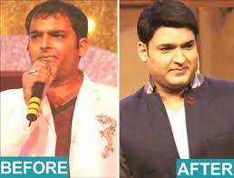 ranbir kapoor hair transplant bollywood actors who adopted hair transplant technique daily bhaskar