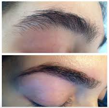 Eyebrow Threading Vs Waxing Beforeandaftereyebrowthreadingbynooratmedispaandsalonincollegestationtx77845 Srcset Large Jpg