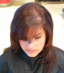 stop womens chin hair growth does natural progesterone stop hair loss in women hairdressers