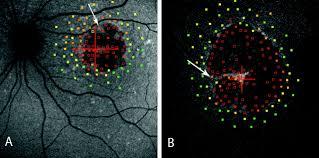 Map Dot Dystrophy Short Wavelength Fundus Autofluorescence Versus Near Infrared