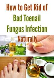 what is it used for fungal nail infections onychomycosis caused