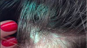 Wen Hair Loss Pictures Fda Now Investigating Popular Infomercial Shampoo Wfaa Com