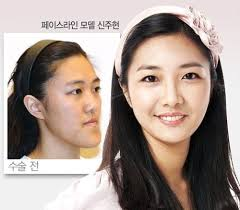 Asian Family Plastic Surgery Meme - 31 crazy before and after photos of korean plastic surgery