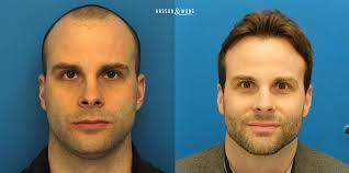 hair transplant america hair transplant toronto toronto hair transplant surgeon