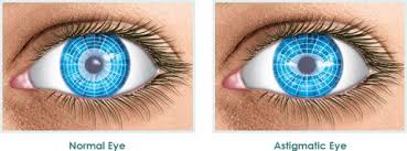 Astigmatism Night Blindness How To Treat Astigmatism