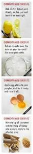 Face Mapping Pimples Best 25 Pimples On Face Ideas On Pinterest Pimples On Body