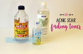 Toner Acne apple cider vinegar acne scar fading toner