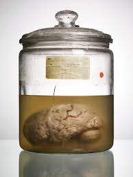 a lost collection of abnormal brains finally gets a history