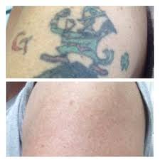 tattoo removal inc disappearing inc 55 photos 63 reviews tattoo removal 128a