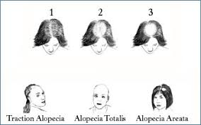 types of hair lines the ludwig scale for women hairloss femalehairloss ludwig