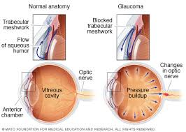Symtoms Of Blindness Glaucoma Symptoms And Causes Mayo Clinic