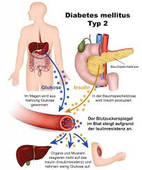 bauchspeicheldrüsenschwäche symptome diabetes anzeichen ursachen und behandlung