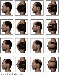 different types of receding hairlines balding and receding hair lines