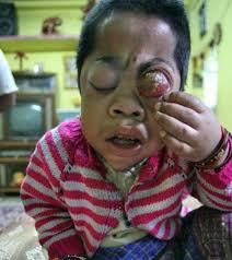 the eye the bhopal appeal