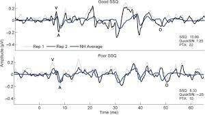 auditory brainstem response to complex sounds predicts self