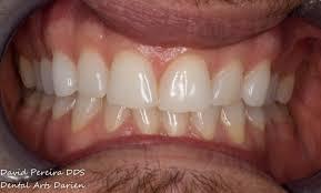 teeth whitening darien ct how to whiten teeth stamford