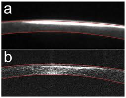 osa corneal topography with high speed swept source oct in