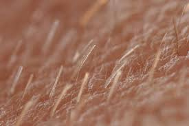 pubic hair disappearing vellus hair wikipedia
