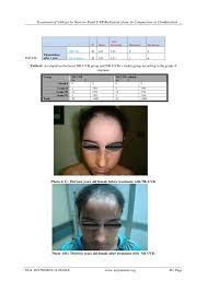 uvb l for vitiligo treatment of vitiligo by narrow band uvb radiation alone in compariso