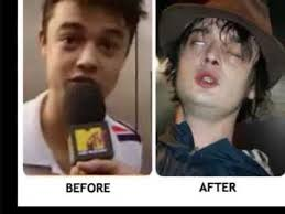 Heroin Addict Meme - 15 shocking drugs addict before and after pictures youtube