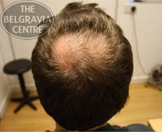 haircuts for crown bald spots male hair loss all you need to know