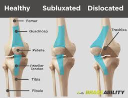 Lateral Patellar Ligament Patellar Subluxation Patella Knee Subluxation