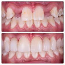 treatment of hypodontia absence of lateral incisors