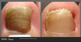 pinpointe laser for nail fungus grand junction podiatrist