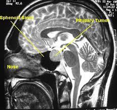 Sagittal Brain Mri Anatomy Anatomy Of Sphenoid Cavernous Sinus U0026 Trans Sphenoid Approach