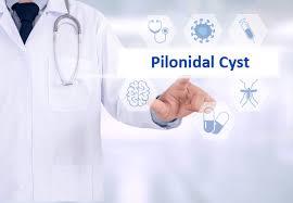 pilonidal cyst location dubai hemorrhoids clinic pilonidal cyst