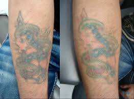 laser tattoo removal my toronto tattoo shop visits