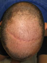 what gets rid of dht in body 5 ways to get rid of dht hair loss plus 7 things you should know