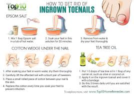 home remedies for ingrown toenails the science of eating