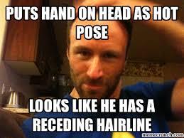 Receding Hairline Meme - hairline