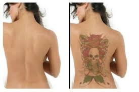 laser tattoo removal treatments dermal solutions australia