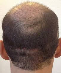 hair transplant month by month pictures progress of the record breaking hair transplant surgery latest
